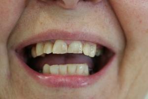 Zähne vorher